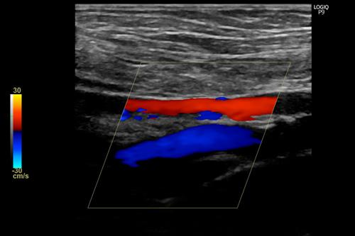 下肢血管エコー